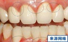 牙龈炎简介 牙龈炎图片