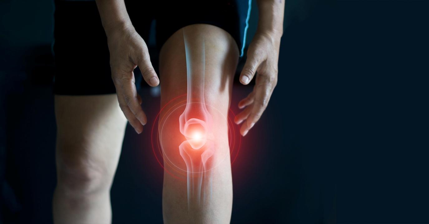 退化性关节炎调查:女患者心理影响更大  运动配合适当营养补充剂可改善病情