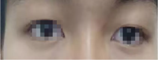 福州爱尔眼科医院成功施行「微创鼻内镜下视神经减压手术」